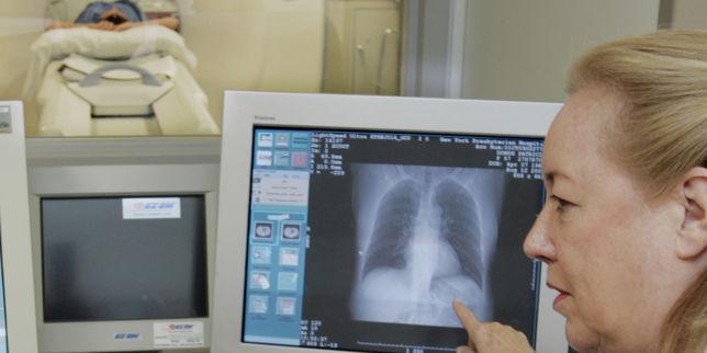 Etats-Unis: pas de corrélation établie entre tabagisme et cancer du poumon chez les jeunes femmes